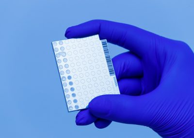 600-medical-blood-blue-glove-holding-test-product-chip